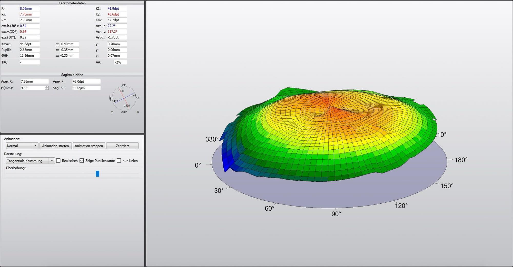 Darstellung einer topographischen Aufnahme der Hornhaut